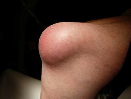 Hygroma du genou